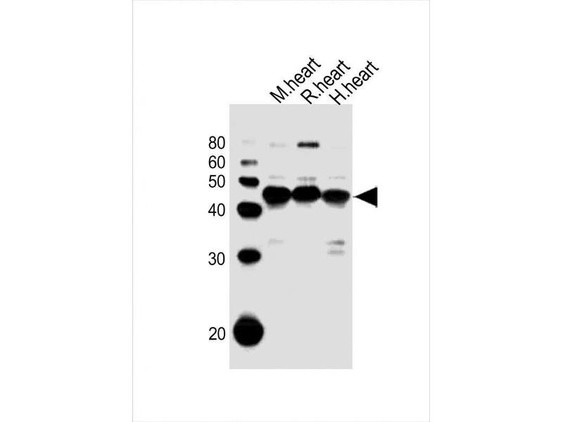 Western Blotting (WB) image for anti-Pyruvate Dehydrogenase Kinase, Isozyme 2 (PDK2) antibody (ABIN5969597)