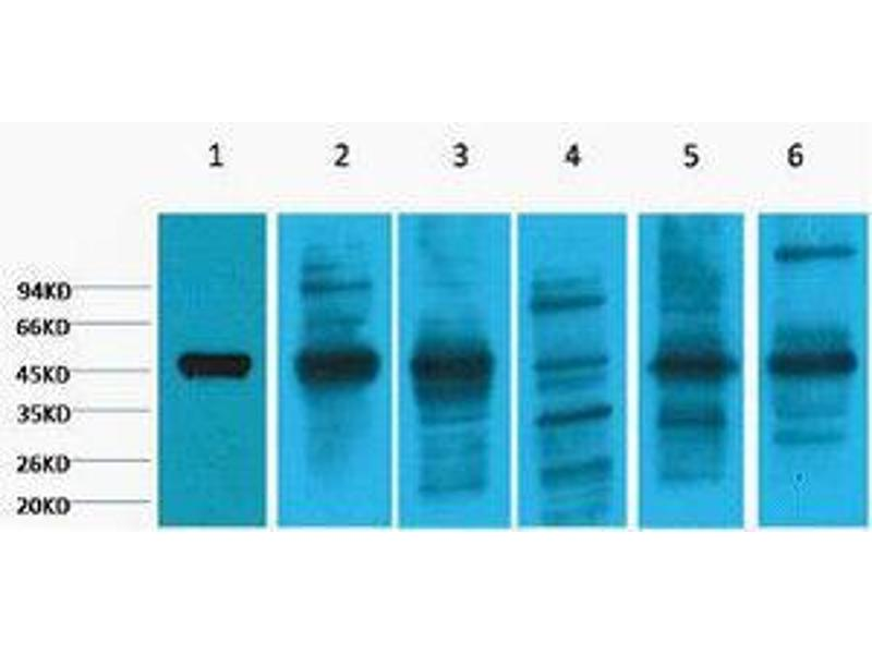 keratin 18 (krt18) 抗体
