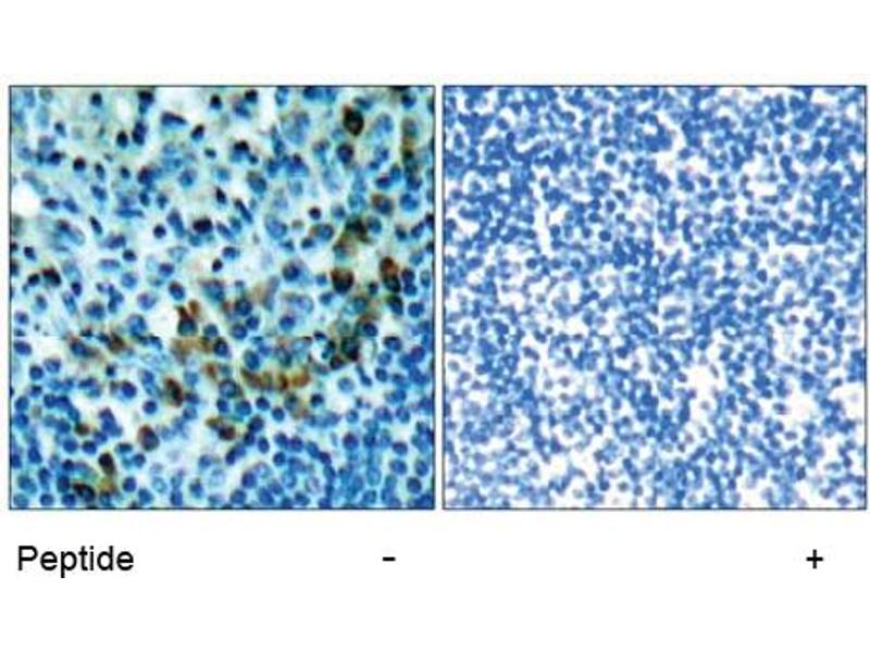 image for anti-zeta-Chain (TCR) Associated Protein Kinase 70kDa (ZAP70) (Tyr319) antibody (ABIN197384)