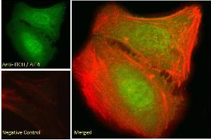 Image no. 1 for anti-Itchy E3 Ubiquitin Protein Ligase Homolog (Mouse) (ITCH) (Internal Region) antibody (ABIN334426)