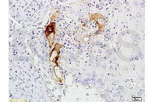 Image no. 1 for anti-Carcinoembryonic Antigen-Related Cell Adhesion Molecule 3 (CEACAM3) antibody (ABIN722931)