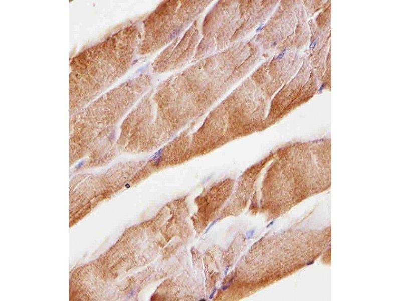 Immunohistochemistry (Paraffin-embedded Sections) (IHC (p)) image for anti-Muscle, Skeletal, Receptor Tyrosine Kinase (MUSK) antibody (ABIN4912113)