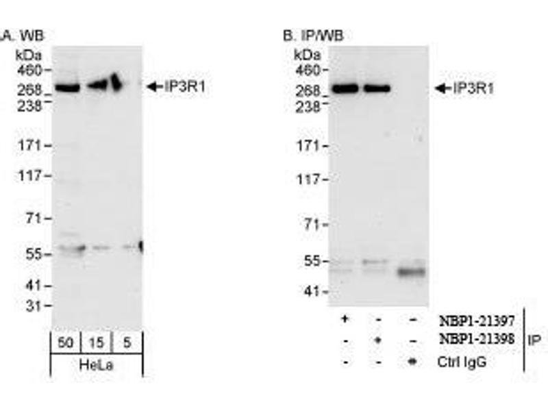 Western Blotting (WB) image for anti-ITPR1 Antikörper (Inositol 1,4,5-Trisphosphate Receptor, Type 1) (AA 2708-2758) (ABIN439358)