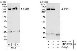Western Blotting (WB) image for anti-Inositol 1,4,5-Trisphosphate Receptor, Type 1 (ITPR1) (AA 2708-2758) antibody (ABIN439358)