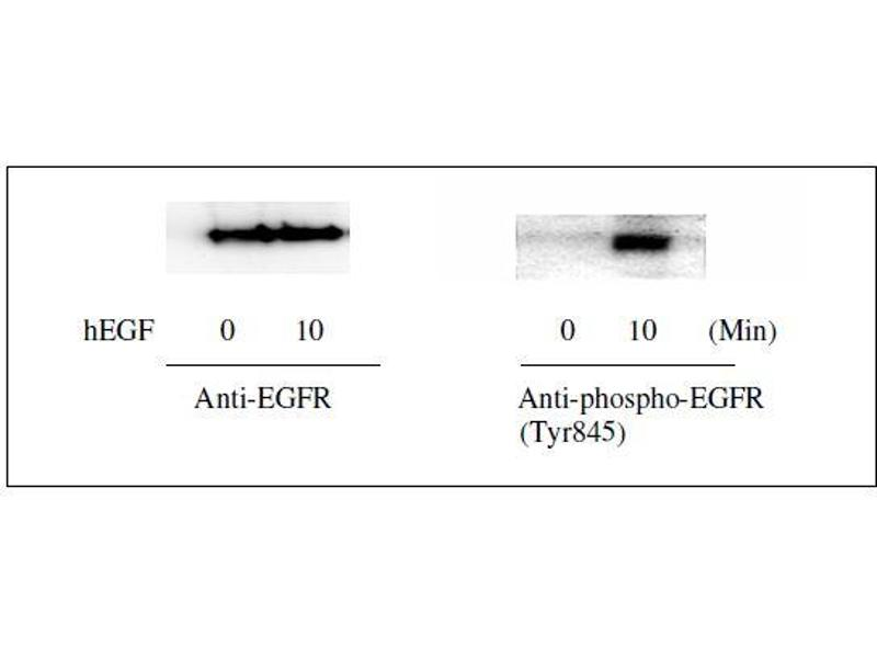 Epidermal Growth Factor Receptor (EGFR) ELISA Kit (8)
