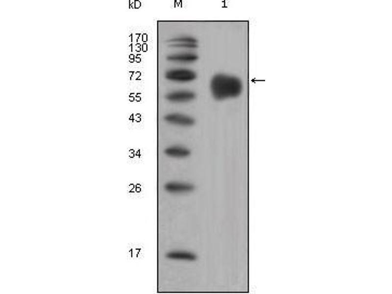 Western Blotting (WB) image for anti-Fibroblast Growth Factor Receptor 4 (FGFR4) antibody (ABIN931414)