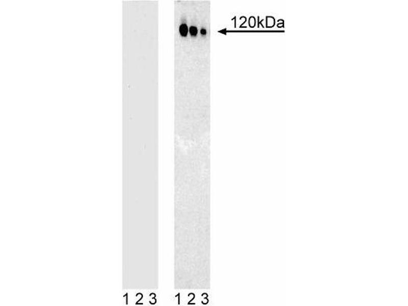 Western Blotting (WB) image for anti-CBL antibody (Cas-Br-M (Murine) Ecotropic Retroviral Transforming Sequence) (pTyr774) (ABIN967577)