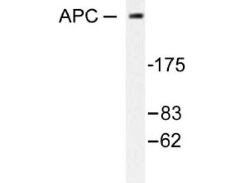 Western Blotting (WB) image for anti-Adenomatous Polyposis Coli (APC) antibody (ABIN407592)