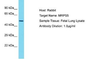 Image no. 1 for anti-Mitochondrial Ribosomal Protein S5 (MRPS5) (N-Term) antibody (ABIN2791672)