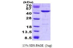 Image no. 1 for YOD1 OTU Deubiquinating Enzyme 1 Homolog (S. Cerevisiae) (YOD1) protein (His tag) (ABIN6387153)