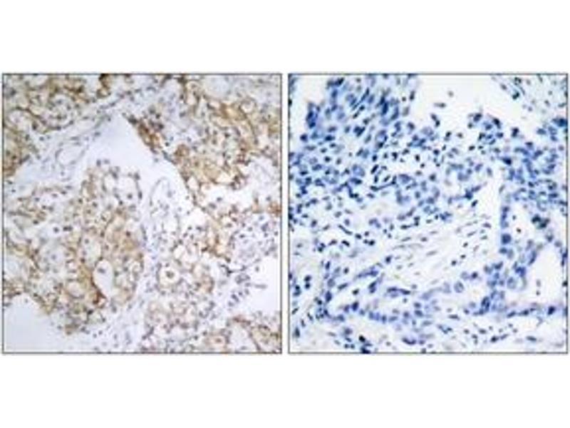 Immunohistochemistry (IHC) image for anti-Insulin-Like Growth Factor 1 Receptor (IGF1R) (AA 1131-1180), (pTyr1161) antibody (ABIN1531870)