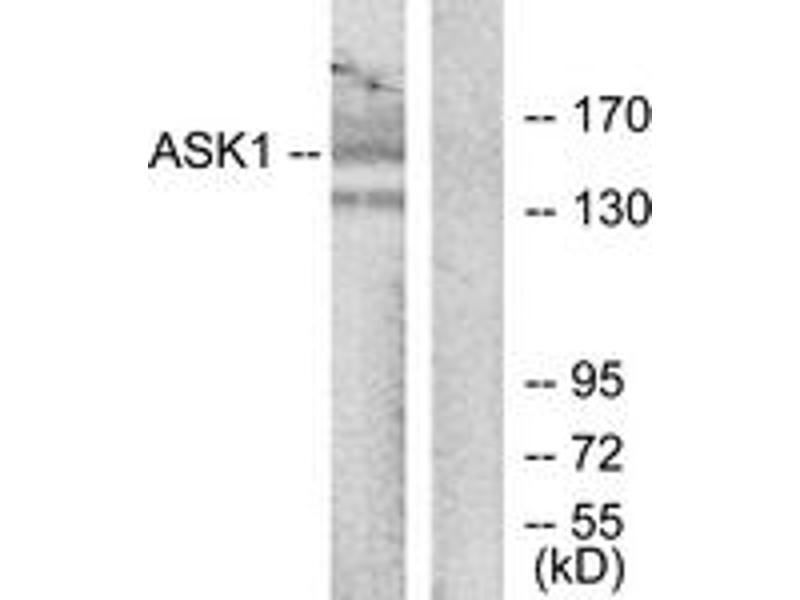 Western Blotting (WB) image for anti-Mitogen-Activated Protein Kinase Kinase Kinase 5 (MAP3K5) (AA 932-981) antibody (ABIN1532802)