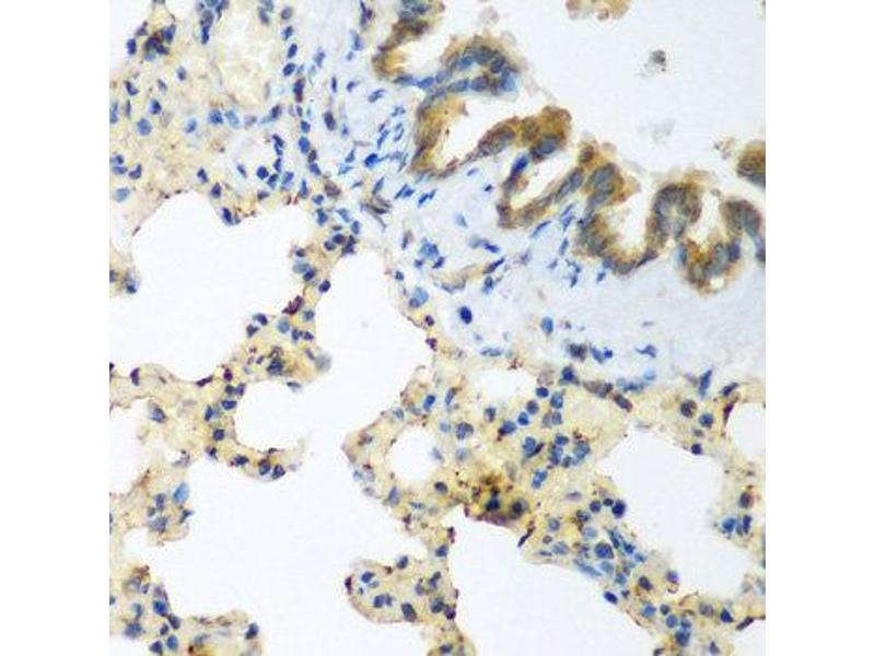 Immunohistochemistry (IHC) image for anti-LLGL2 antibody (Lethal Giant Larvae Homolog 2 (Drosophila)) (ABIN2737115)