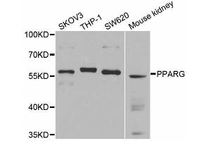 Image no. 1 for anti-Peroxisome Proliferator-Activated Receptor gamma (PPARG) antibody (ABIN6566550)