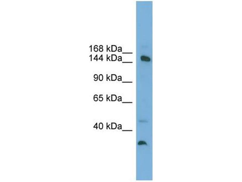 Western Blotting (WB) image for anti-Mediator Complex Subunit 14 (MED14) (Middle Region) antibody (ABIN2787568)