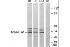 Image no. 3 for anti-Heterogeneous Nuclear Ribonucleoprotein A1 (HNRNPA1) antibody (ABIN1107590)