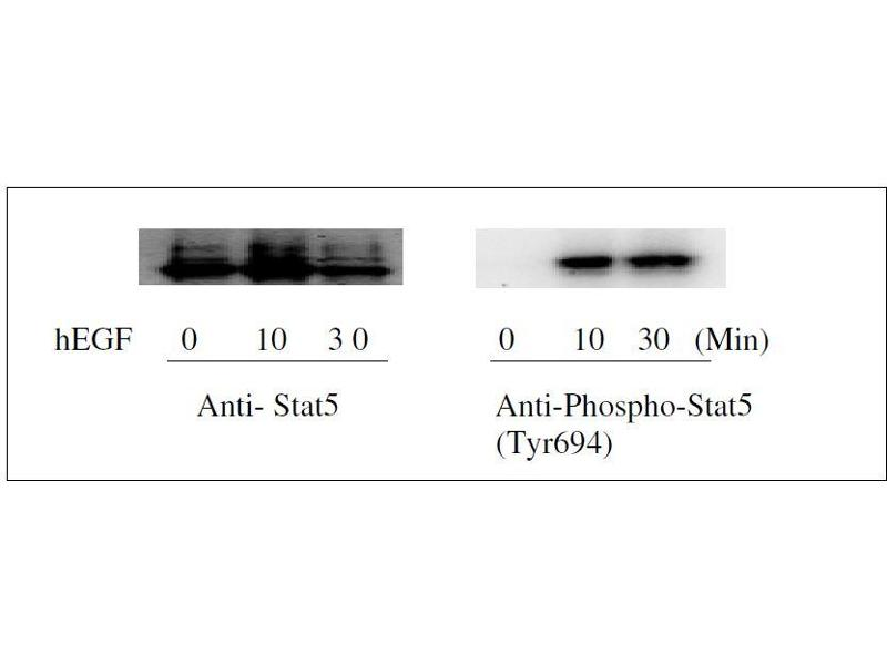 Western Blotting (WB) image for Signal Transducer and Activator of Transcription 5A (STAT5A) ELISA Kit (ABIN1981843)