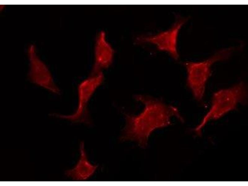 Image no. 3 for anti-Interleukin 11 Receptor, alpha (IL11RA) antibody (ABIN6257607)