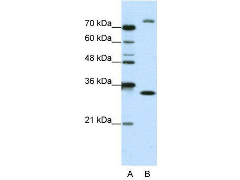 Western Blotting (WB) image for anti-Exosome Component 2 (EXOSC2) (N-Term) antibody (ABIN184031)