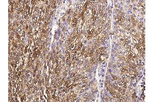 Image no. 3 for anti-S100 Calcium Binding Protein A6 (S100A6) (AA 1-90) antibody (ABIN2682576)