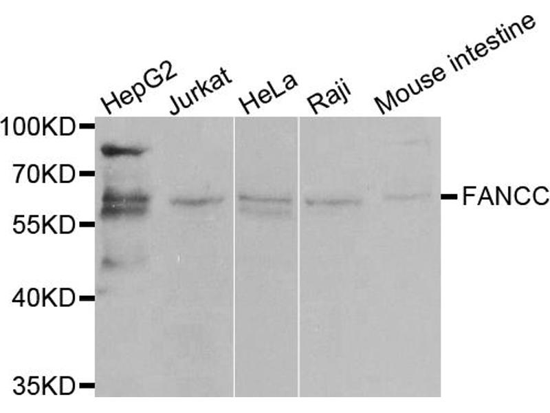 Image no. 1 for anti-Fanconi Anemia, Complementation Group C (FANCC) antibody (ABIN6568914)