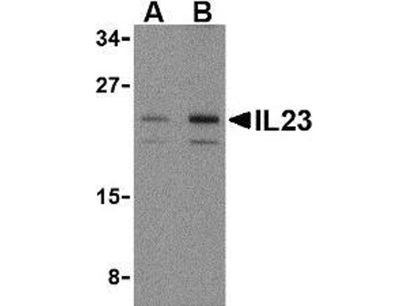 Western Blotting (WB) image for anti-interleukin 23, alpha subunit p19 (IL23A) (N-Term) antibody (ABIN499998)