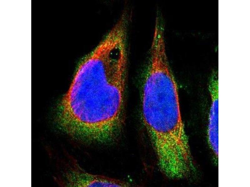 Immunofluorescence (IF) image for anti-Ataxin 2 (ATXN2) antibody (ABIN4281955)