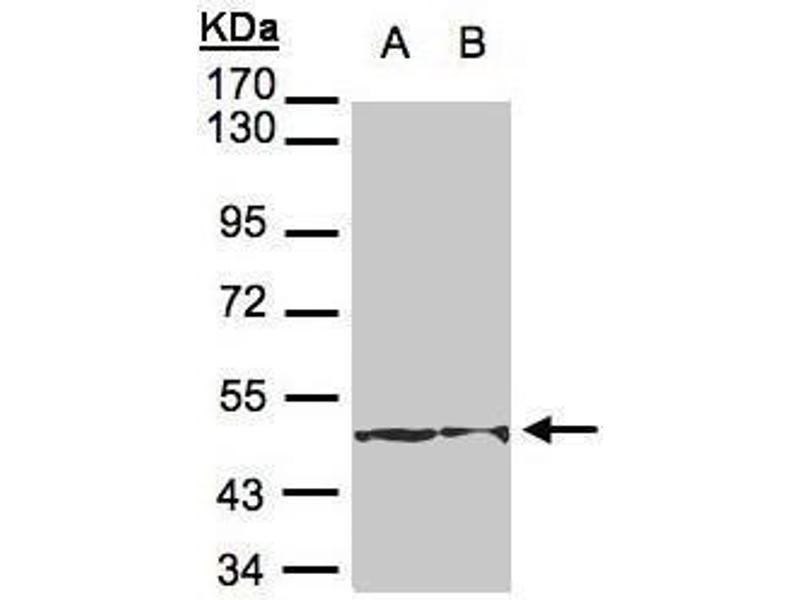 Image no. 4 for anti-Keratin 18 (KRT18) (Internal Region) antibody (ABIN2856142)