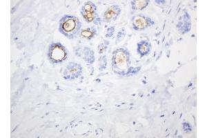 Image no. 1 for anti-Mucin 1, Cell Surface Associated (MUC1) antibody (ABIN1499597)
