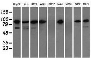 Image no. 3 for anti-Transforming, Acidic Coiled-Coil Containing Protein 3 (TACC3) antibody (ABIN1498100)