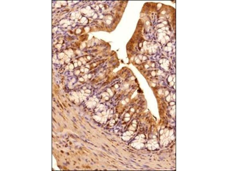 Immunohistochemistry (Paraffin-embedded Sections) (IHC (p)) image for anti-ERN1 antibody (Endoplasmic Reticulum (ER) To Nucleus Signalling 1) (AA 700-800) (ABIN250711)