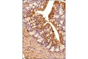 Immunohistochemistry (Paraffin-embedded Sections) (IHC (p)) image for anti-ERN1 抗体 (Endoplasmic Reticulum To Nucleus Signaling 1) (AA 700-800) (ABIN250711)