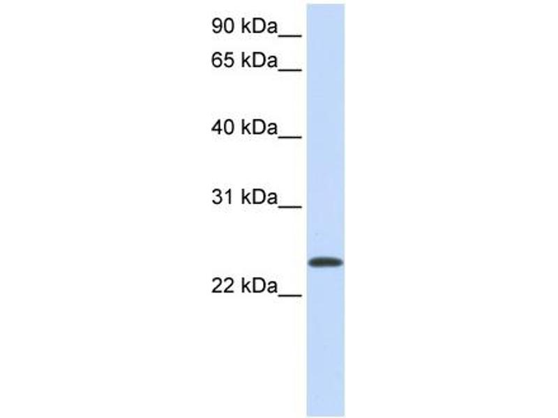 Western Blotting (WB) image for anti-ADP-Ribosylation Factor 1 (ARF1) (Middle Region) antibody (ABIN2783267)