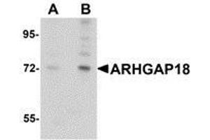 Western Blotting (WB) image for anti-rho GTPase Activating Protein 18 (ARHGAP18) (C-Term) antibody (ABIN499333)