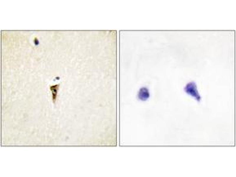 Immunohistochemistry (IHC) image for anti-Intestinal Cell (MAK-Like) Kinase (ICK) (AA 241-290) antibody (ABIN1534198)