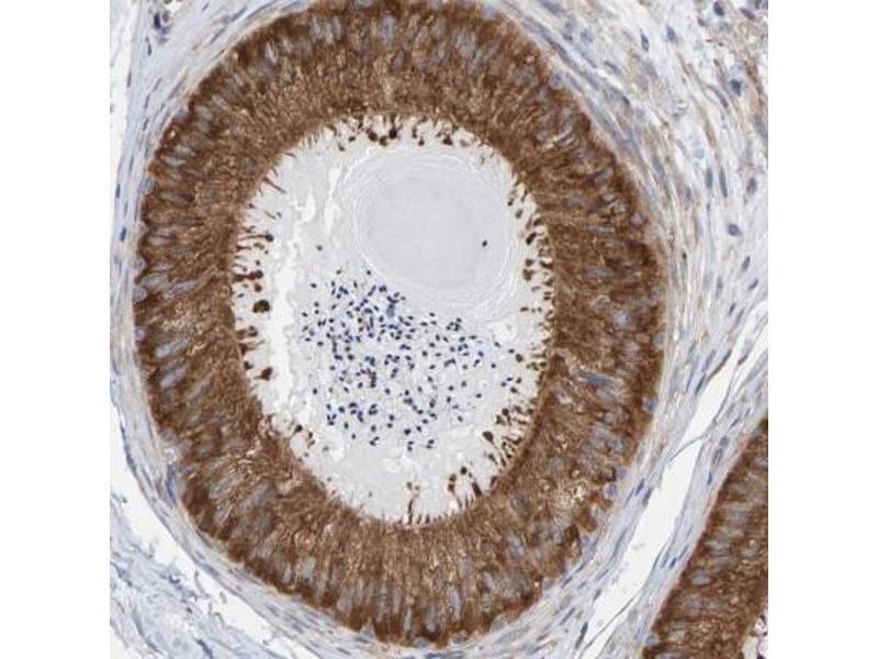 Immunofluorescence (Paraffin-embedded Sections) (IF (p)) image for anti-CDK5 Regulatory Subunit Associated Protein 3 (CDK5RAP3) antibody (ABIN4297064)
