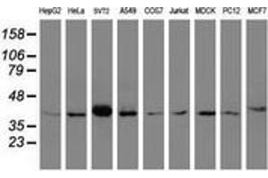 Image no. 1 for anti-alpha-1,4-N-Acetylglucosaminyltransferase (A4GNT) (AA 121-340) antibody (ABIN2715587)