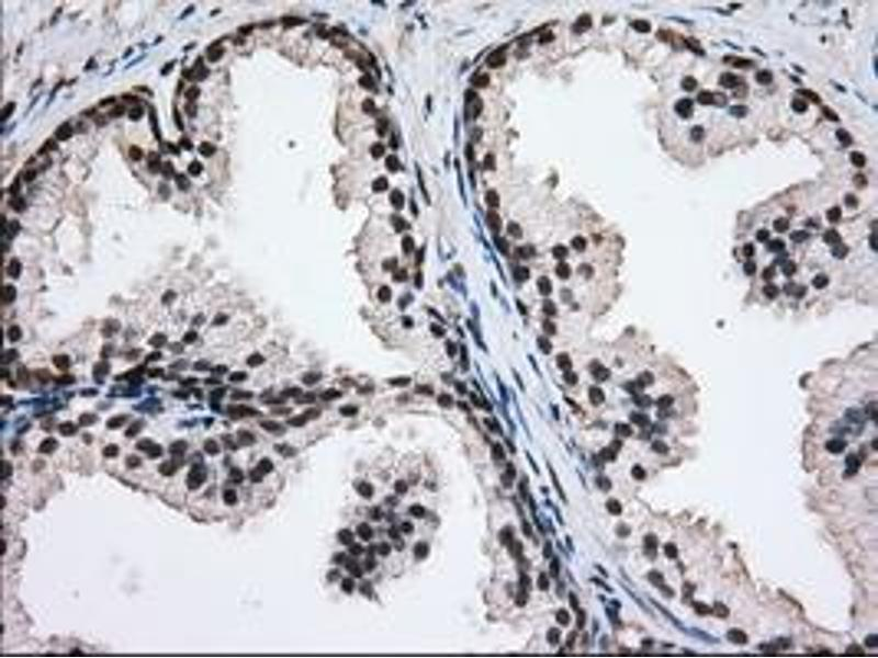 Immunohistochemistry (IHC) image for anti-Glucose-6-Phosphate Dehydrogenase (G6PD) antibody (ABIN2722394)