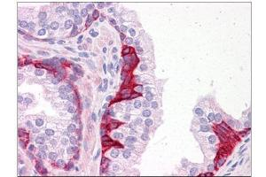 Immunohistochemistry (Paraffin-embedded Sections) (IHC (p)) image for anti-PIAS3 antibody (Protein Inhibitor of Activated STAT, 3) (C-Term) (ABIN783253)