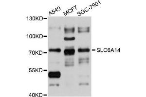 Image no. 2 for anti-Solute Carrier Family 6 (Amino Acid Transporter), Member 14 (Slc6a14) antibody (ABIN4905211)