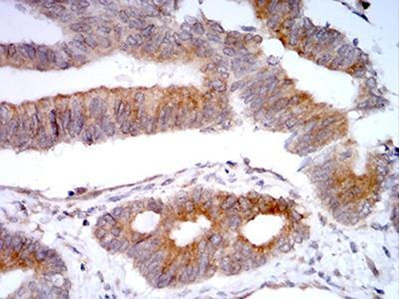 Immunohistochemistry (IHC) image for anti-Selenoprotein S (SELS) (AA 1-187) antibody (ABIN5542694)