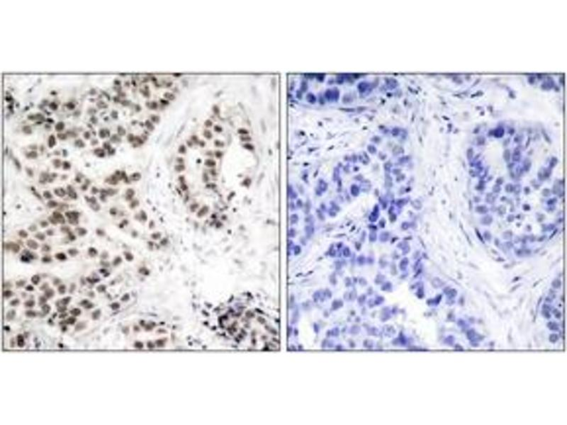 Immunohistochemistry (IHC) image for anti-Checkpoint Kinase 2 (CHEK2) (AA 35-84), (pThr68) antibody (ABIN1531803)
