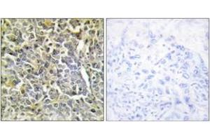 Image no. 2 for anti-Collagen, Type VI, alpha 2 (COL6A2) (AA 691-740) antibody (ABIN1534347)