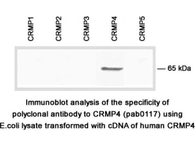 Image no. 2 for anti-Dihydropyrimidinase-Like 3 (DPYSL3) (C-Term) antibody (ABIN1514914)