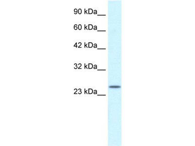 Western Blotting (WB) image for anti-Zinc Finger, AN1-Type Domain 6 (ZFAND6) (Middle Region) antibody (ABIN183014)