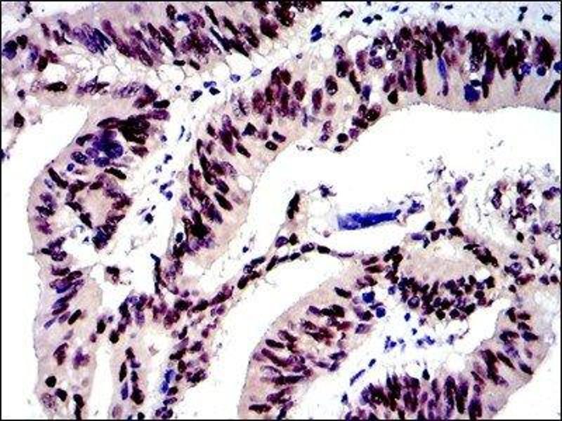Immunohistochemistry (IHC) image for anti-Jun Proto-Oncogene (JUN) antibody (ABIN4285648)