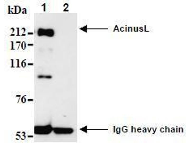 Western Blotting (WB) image for anti-ACIN1 antibody (Apoptotic Chromatin Condensation Inducer 1) (N-Term) (ABIN1105223)