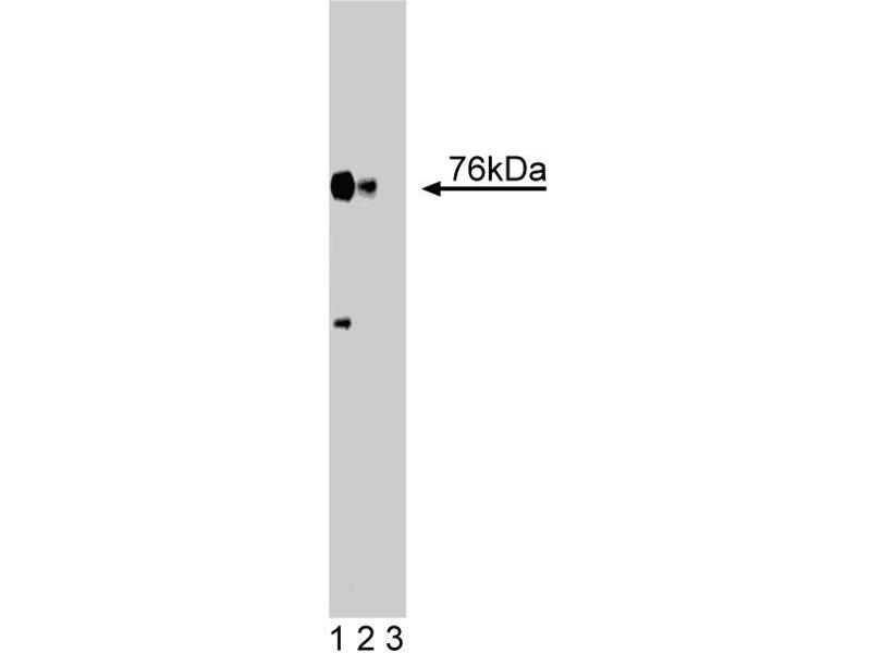 Western Blotting (WB) image for anti-Lymphocyte Cytosolic Protein 2 (SH2 Domain Containing Leukocyte Protein of 76kDa) (LCP2) (AA 369-520) antibody (ABIN968146)