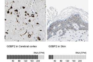 Immunohistochemistry (Paraffin-embedded Sections) (IHC (p)) image for anti-GTPase Activating Protein (SH3 Domain) Binding Protein 2 (G3BP2) antibody (ABIN4313043)