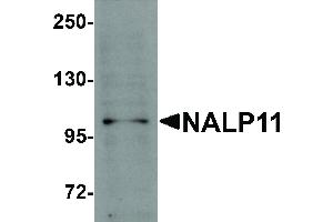 Image no. 1 for anti-NLR Family, Pyrin Domain Containing 11 (NLRP11) (C-Term) antibody (ABIN6655447)